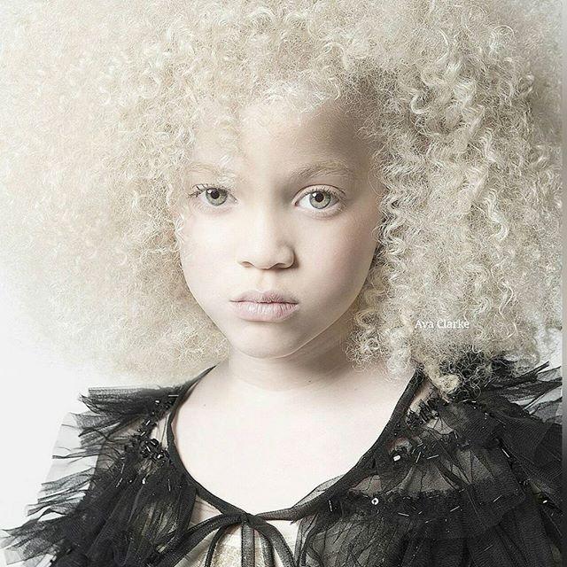 Прекрасно албино девојче