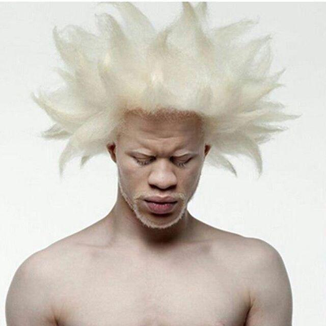 Момче албино со темен тен