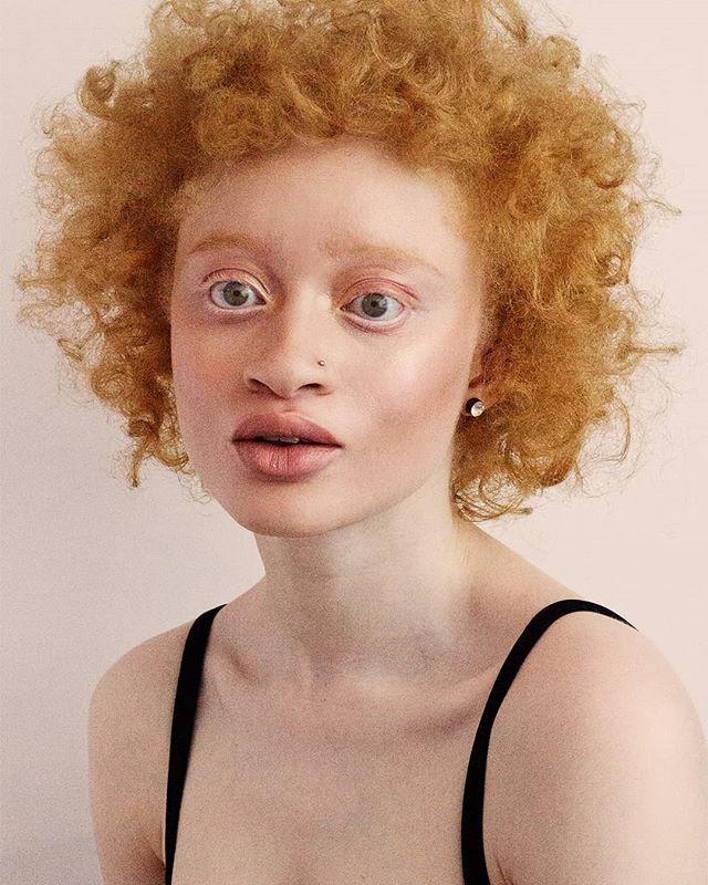 Миријан Нох е познат Африкански модел со црвен пигмент