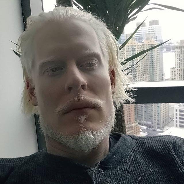 Стивен Томсон има уникатна боја на кожата